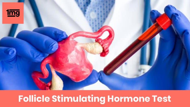 Follicle Stimulating Hormone