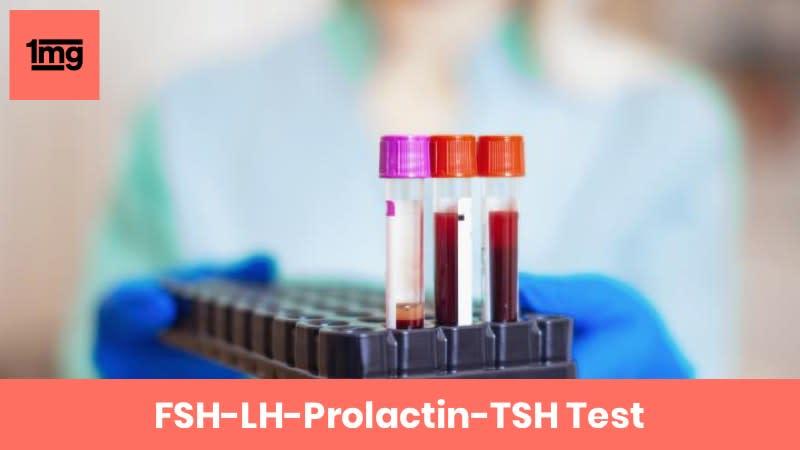 FSH-LH-Prolactin-TSH