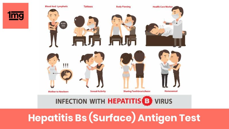 Hepatitis Bs (Surface) Antigen