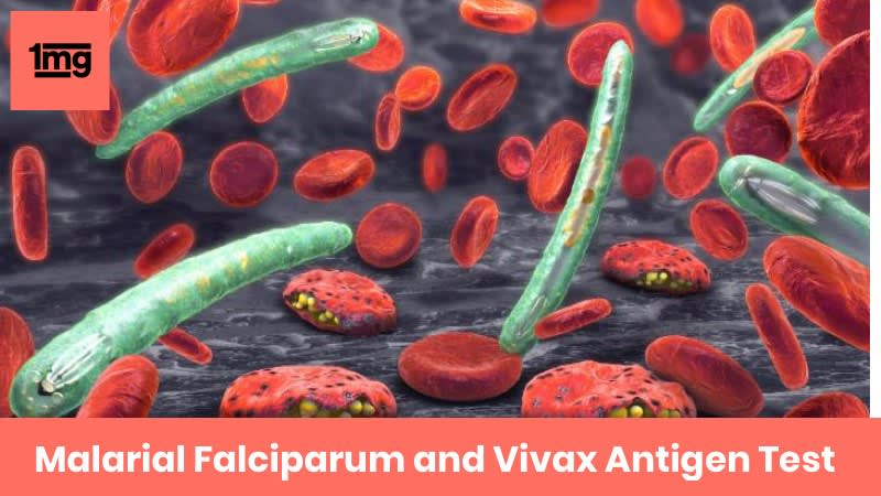Malarial Falciparum and Vivax Antigen