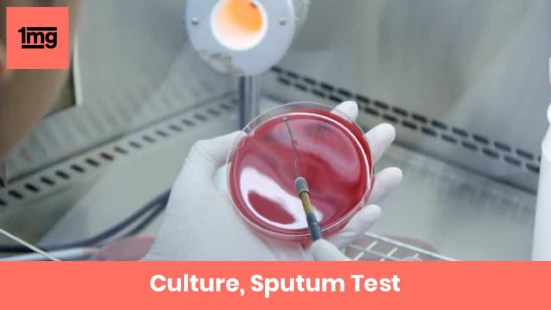 Culture, Sputum
