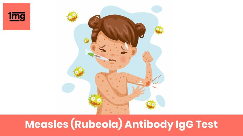 Measles (Rubeola) Antibody IgG
