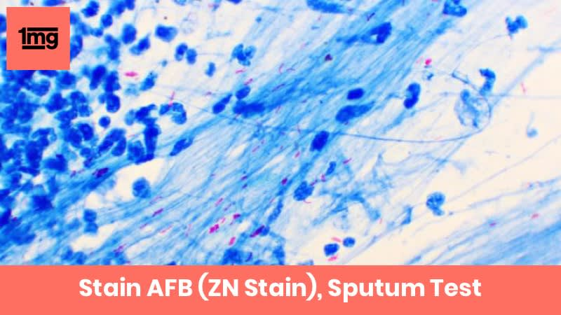 Stain AFB (ZN Stain), Sputum