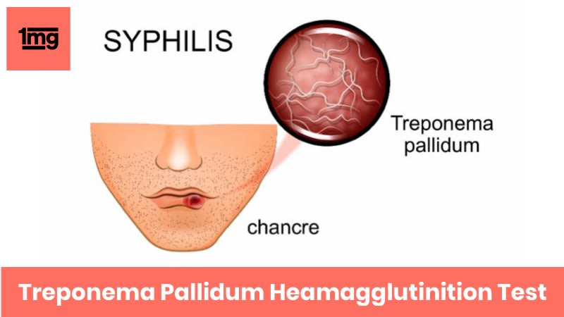 Treponema Pallidum Hemagglutination