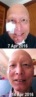 Facial photos taken one week apart