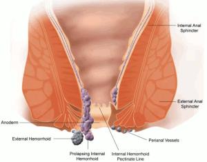 Esquema Hemorroidas