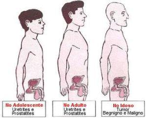 as principais doenças de próstata e câncer de próstata