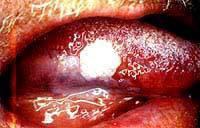 Lesão precursora de câncer – Leucoplasia