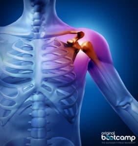 Schulterschmerzen, Impingement Syndrom