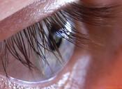 6 Excelentes recetas para las bosas bajo los ojos