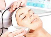 ¿Cómo funciona un Peeling ultrasónico?
