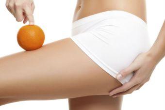 Tratamientos anti flacidez y celulitis para lucirse en verano