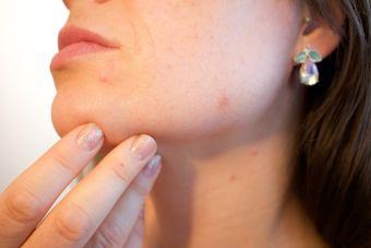 ¿Cómo eliminar el acné de forma natural?