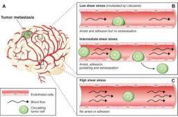 tumor cell metastasis