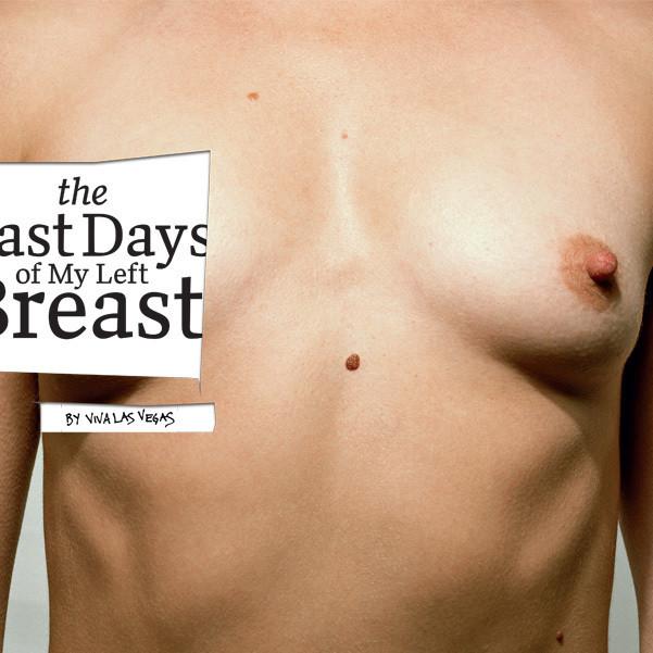 03 056 breast opener hznxb3