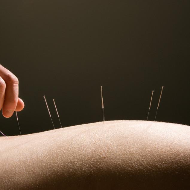 0801 pg074 laotzu needles lzf6nh