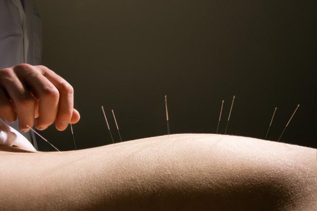 lao tzu needles