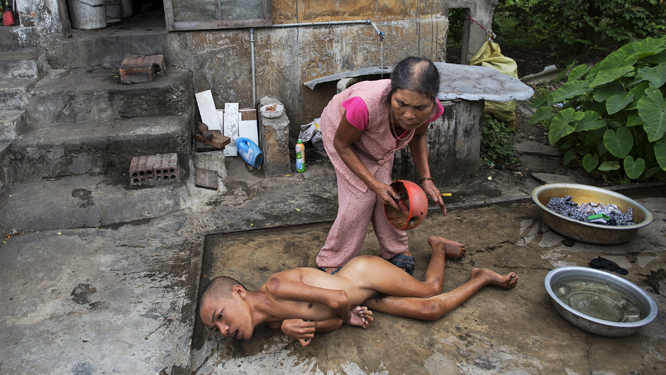 Wider Image: Vietnam: The Legacy Of Agent Orange