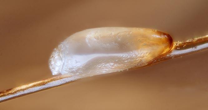 Lus legger egg like inntil hodebunnen. Eggene kan ofte minne om flass. (FOTO: GILLES SAN MARTIN/FLICKR/CC BY-SA 2.0)