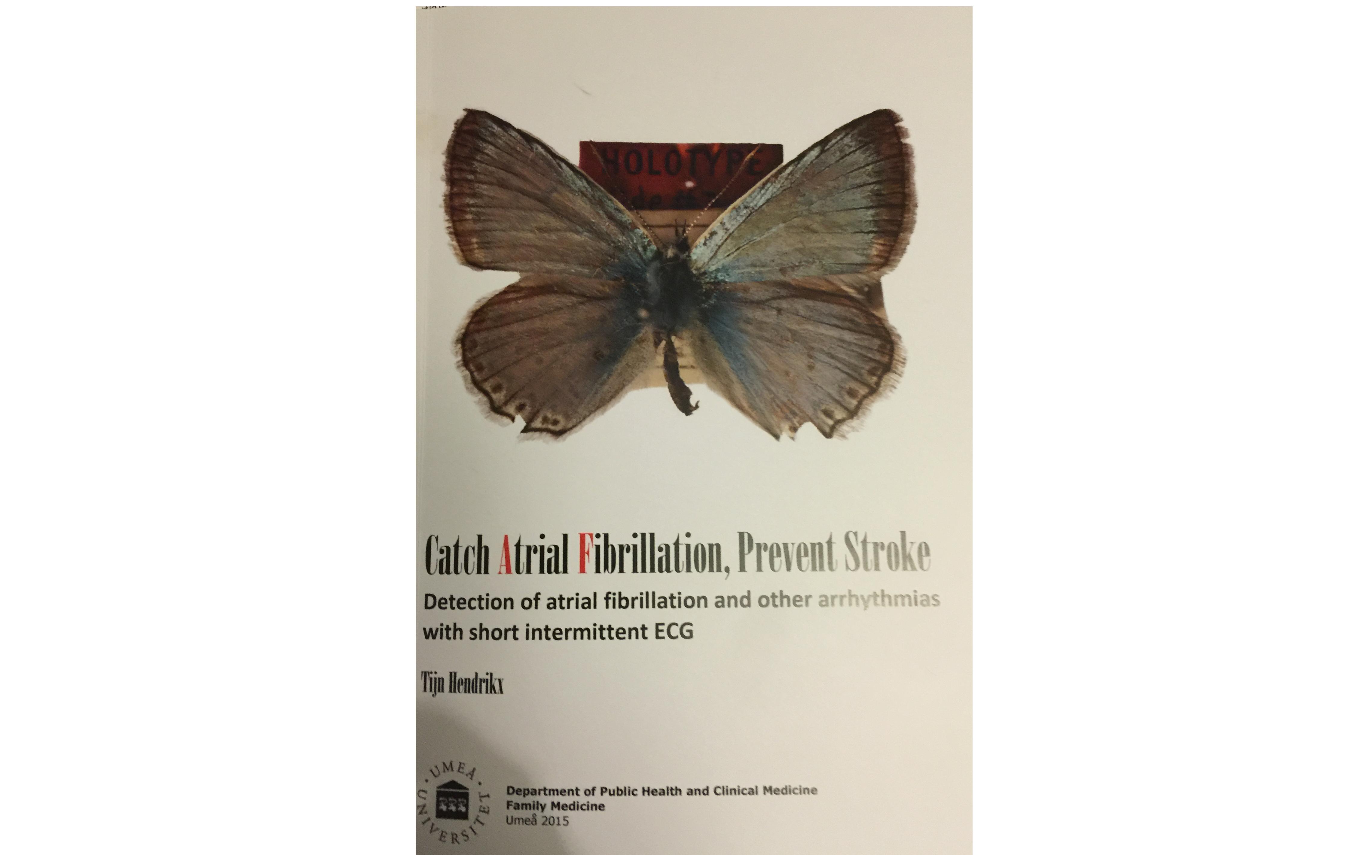 Årets Allmänmedicinska avhandling 2015: Catch Atrial Fibrillation, Prevent Stroke