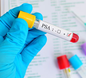 Prostate Cancer Controversy: Should You Get Screened?