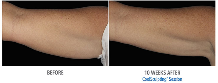 Before and after CoolSculpting fat treatment for arms.