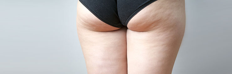Woman's thighs showing cellulite.