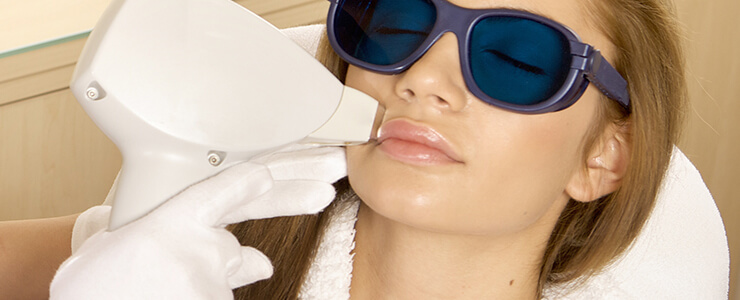 Woman getting laser hair removal on her upper lip.