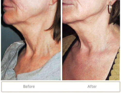 Before and after of skin tightening treatment on lower face and neck with Venus Freeze technology.