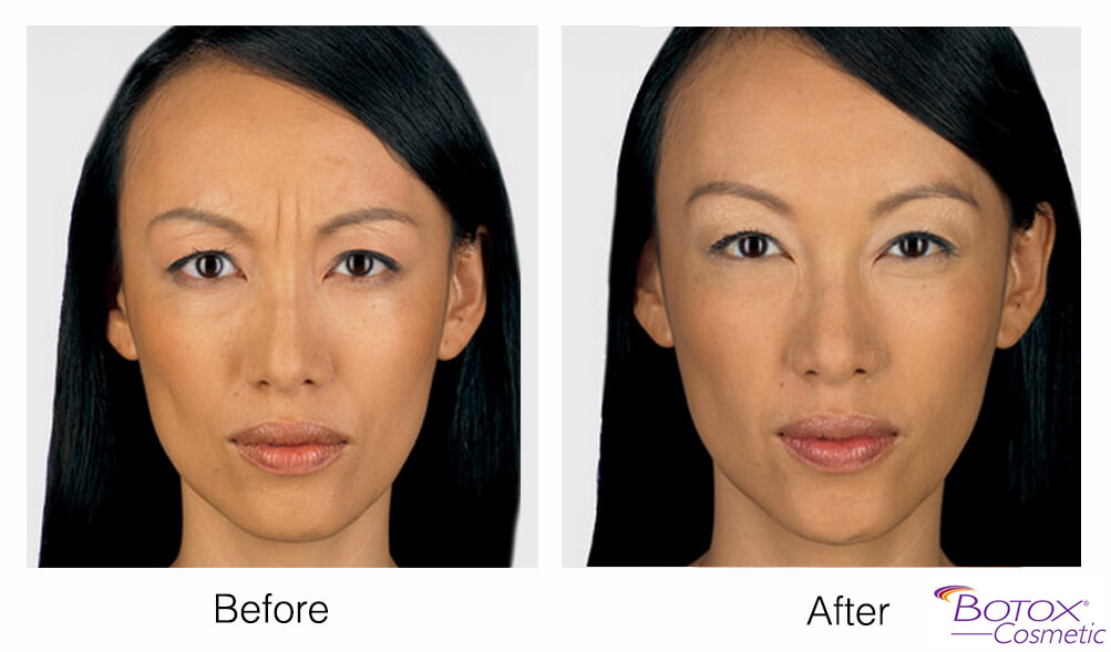 before and after botox treatment for the frown lines of asian woman