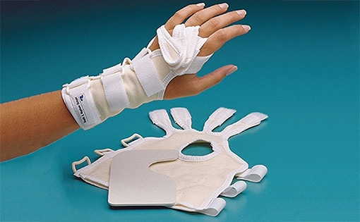Adjustable Ulnar Deviation Splint