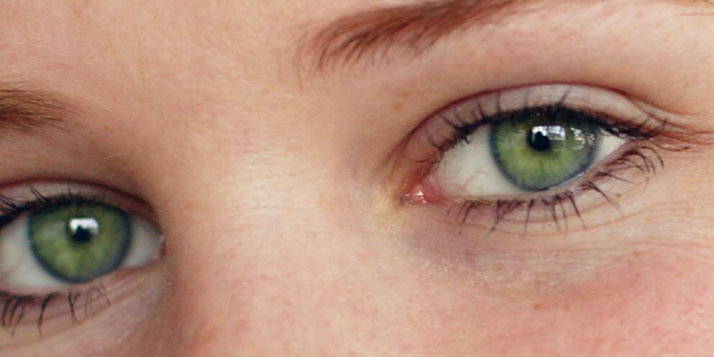 ljuskänsliga ögon orsak