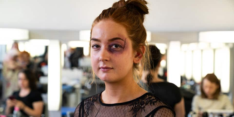 Student with bruising makeup on face