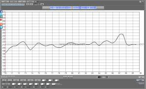 Furtwangler Beethoven 9 Coda Comparison (ALL VERSIONS)