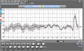 Glenn Gould-Goldberg Variations, BWV 988 - Variation 1 a 1 Clav. (Goldberg Variations, BWV 988: Variation 1 a 1 Clav.(Remastered)) (Remastered)