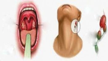 Signs of throat, nose and mouth cancer