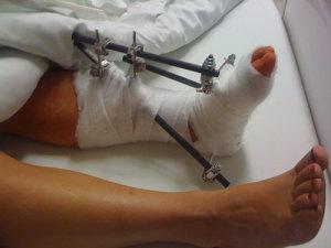 my broken ankle