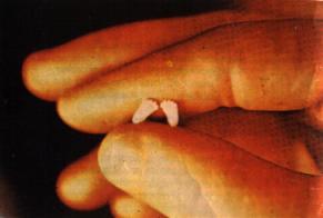 No all'aborto - Walter Sulla