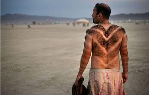 Illus: Hårfjerning for menn med Laser