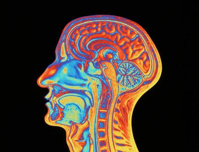 Deja Vu - © Attention Deficit Disorder Prosthetic Memory Program