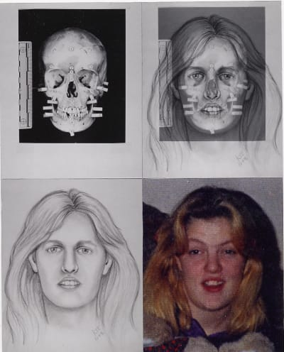 Forensic Facial Reconstruction - © Attention Deficit Disorder Prosthetic Memory Program