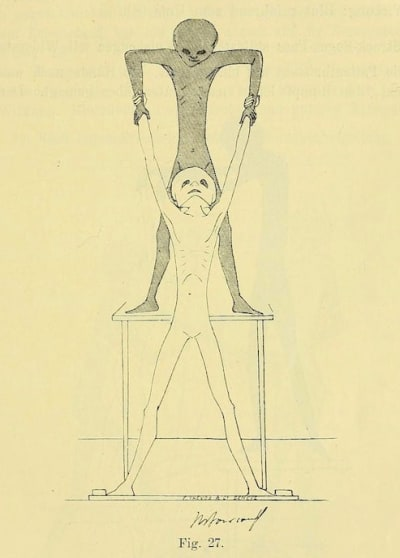 Gynecological Gymnastics from Outer Space - © Attention Deficit Disorder Prosthetic Memory Program