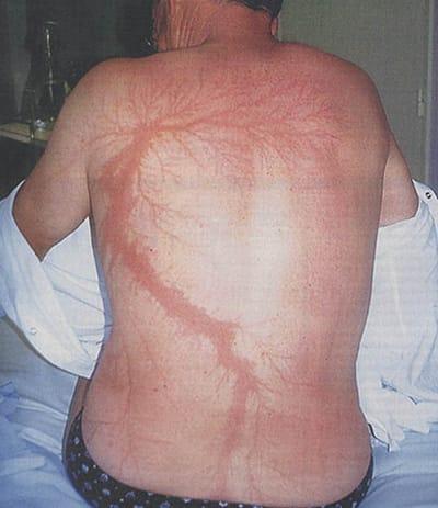 Lichtenberg Figure - © Attention Deficit Disorder Prosthetic Memory Program