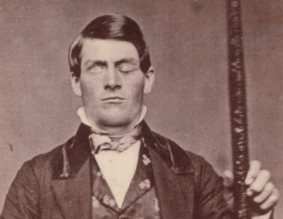 Phineas Gage - © Attention Deficit Disorder Prosthetic Memory Program