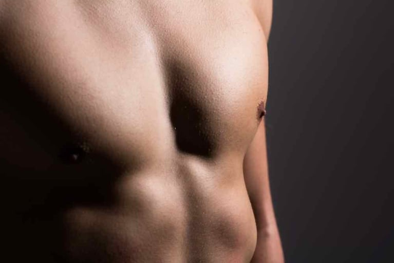 Everything You Need To Know About Gynecomastia