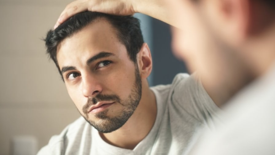 How To Reshape Your Hairline   AEDITION