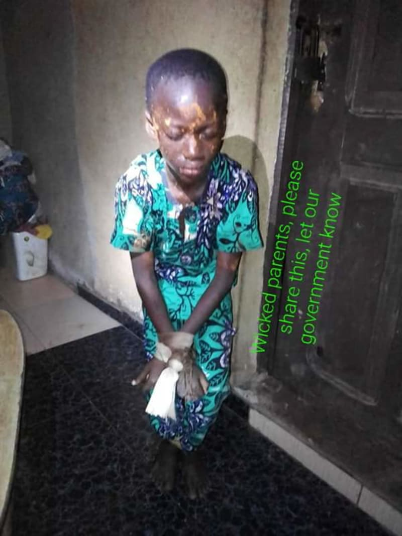 Parents Tie Their Son With Rope In Lagos, Spray Pepper On His Face (Graphic)