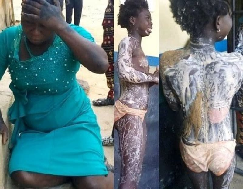 Aunt Destroys Niece's Body With Hot Boiling Water (Graphic Photos)
