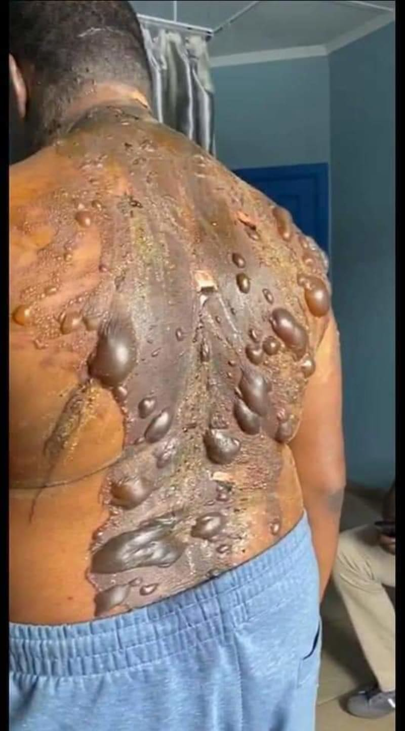 Wife Pours Hot Water On Husband For Buying Phone For His Mistress (Graphic Pics)