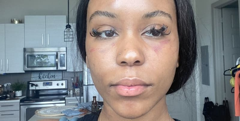 Lady Beaten By Her Lesbian Girlfriend (Disturbing Photos)